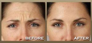 botox-forehead2